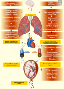 Patofisiologis Emboli Air Ketuban