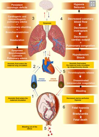 Diagnostik dan Penanganan Ketuban Pecah Dini, Amnionitis dan Emboli Air Ketuban